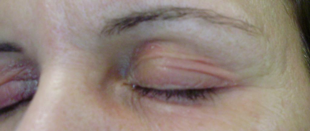 corticosteroides topicos para dermatitis de contacto