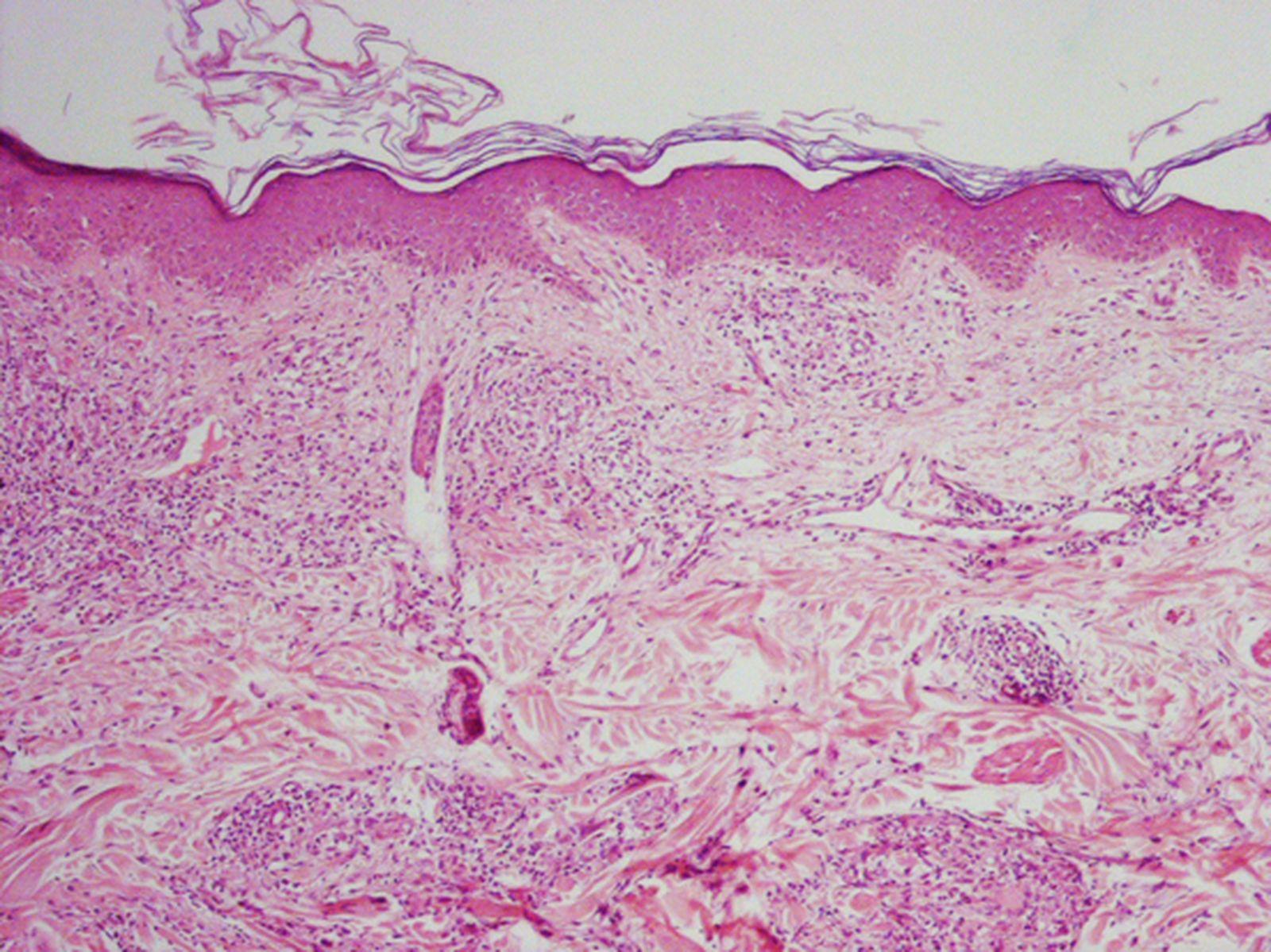 esteroides orales definicion