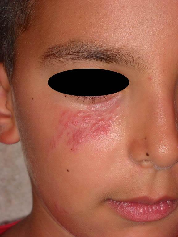 perioral dermatitis steroid cream