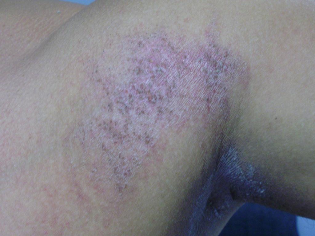 La partida a atopicheskom la dermatitis