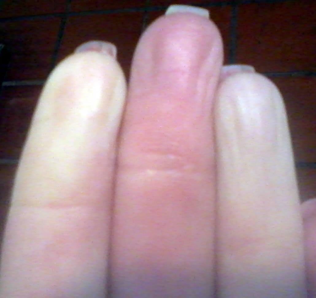 completo dedos
