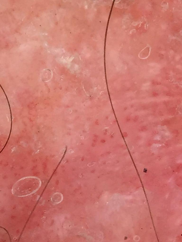 La mancha de pigmento sobre la persona como librarse el foro las revocaciones