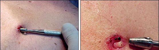 Capitulo 10 Técnicas De Biopsias En Dermatología Piel