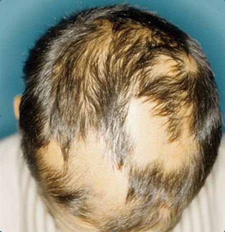 hairloss blocker,hairloss blocker FUNCIONA,QUEDA DE CABELO,CALVICIE,CARECA,Hairloss blocker realmente FUNCIONA!,acabar com a calvície,como acabar com a queda de cabelo