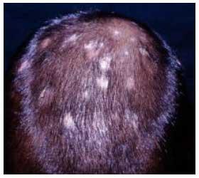 Las vitaminas que influyen sobre el crecimiento de los cabello