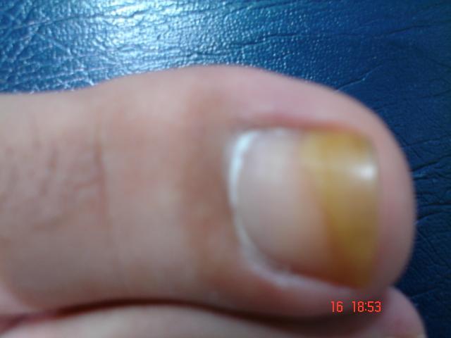 CAPITULO 39: Enfermedades Frecuentes de las Uñas | PIEL ...