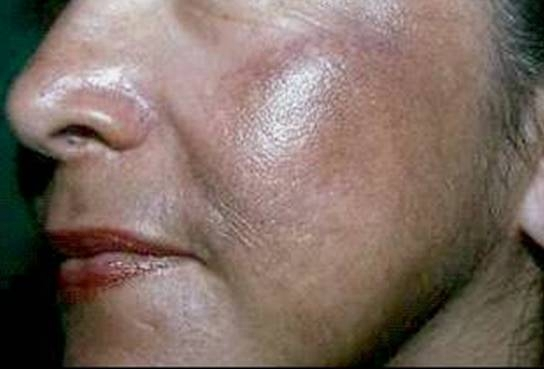 causas de los esteroides