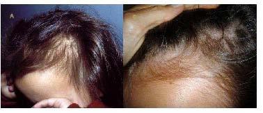 La alopecia temprana el indicio de que