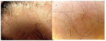CAPITULO 95: Diagnóstico diferencial en alopecias infantiles | PIEL