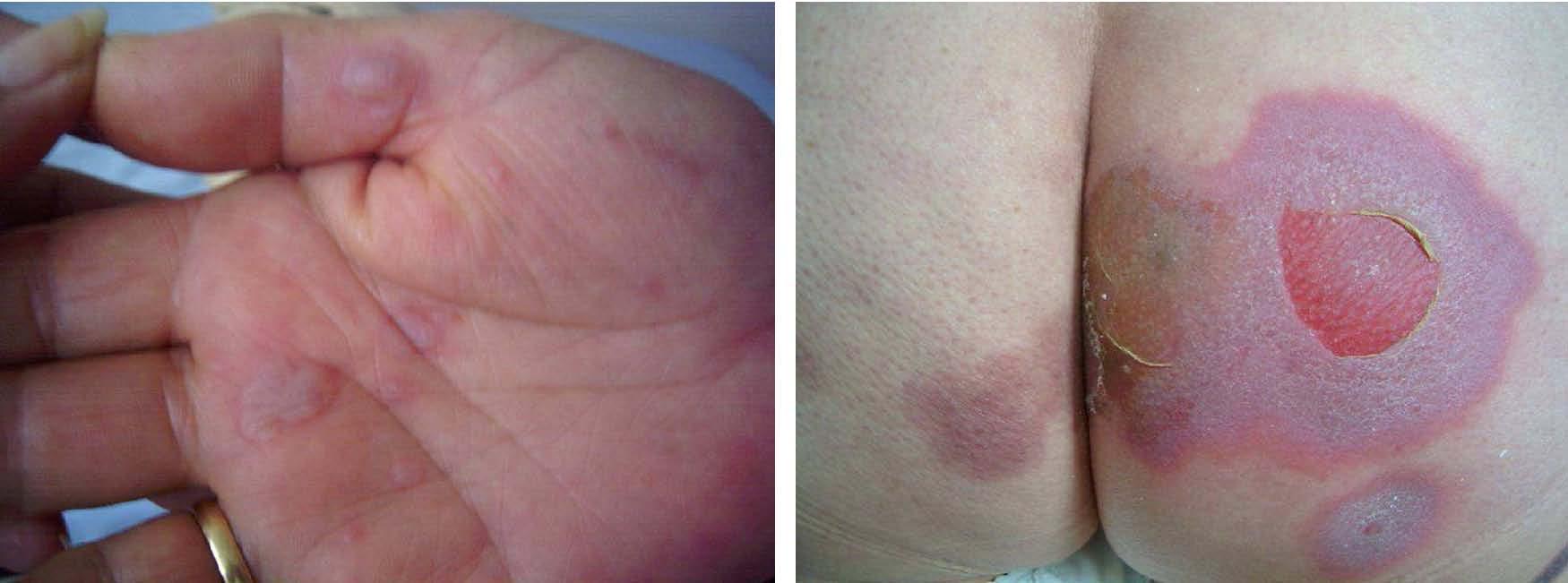 Imagen 47, 48: paciente con lesiones en dianas en manos y zona glútea