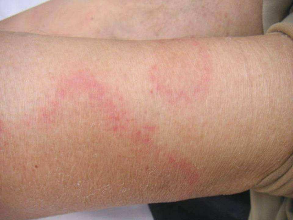 Manchas en la piel por hiv fotos