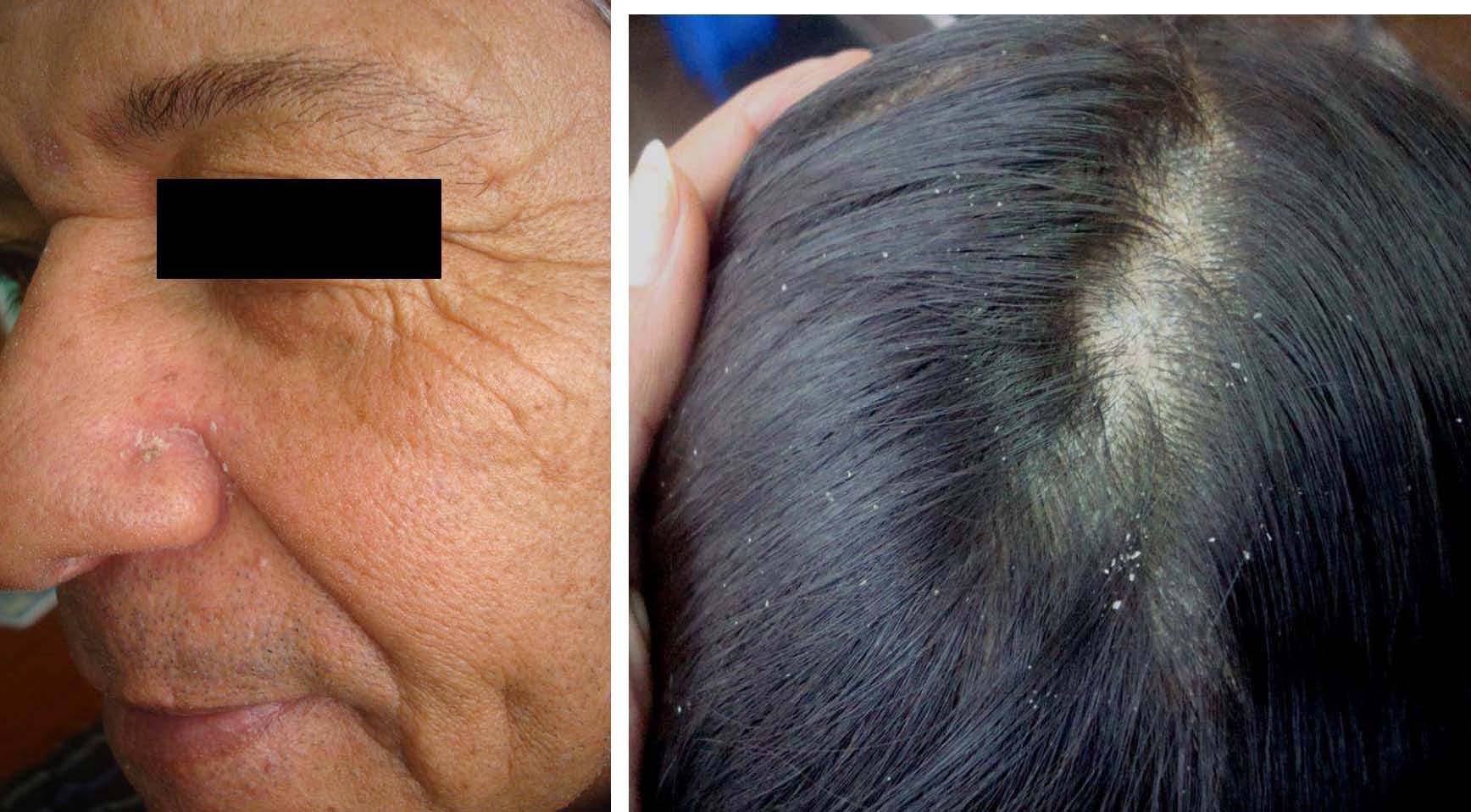 La sal la psoriasis los cabellos