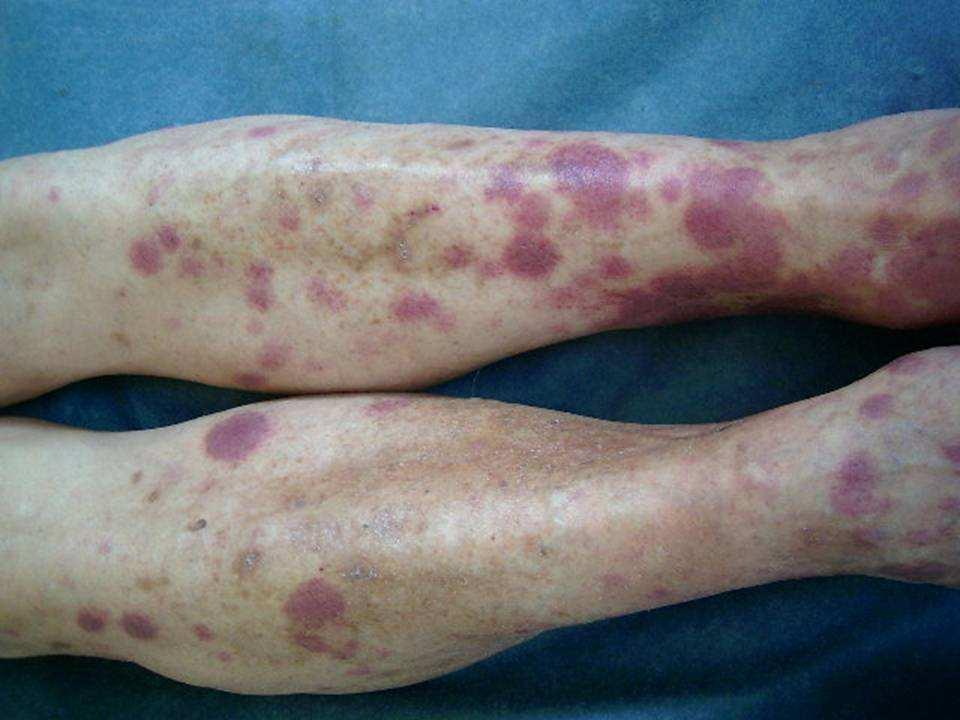 Que es la mancha varicosa de la foto