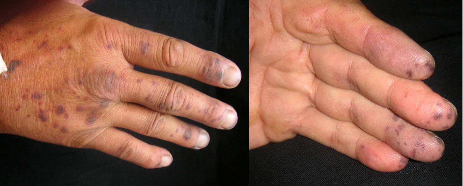 imágenes de diabetes por vasculitis leucocitoclástica