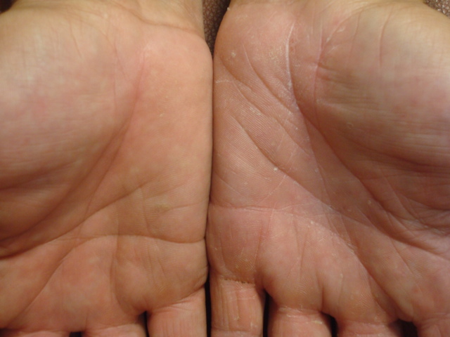 El ácido fólico a la psoriasis la dosificación las revocaciones